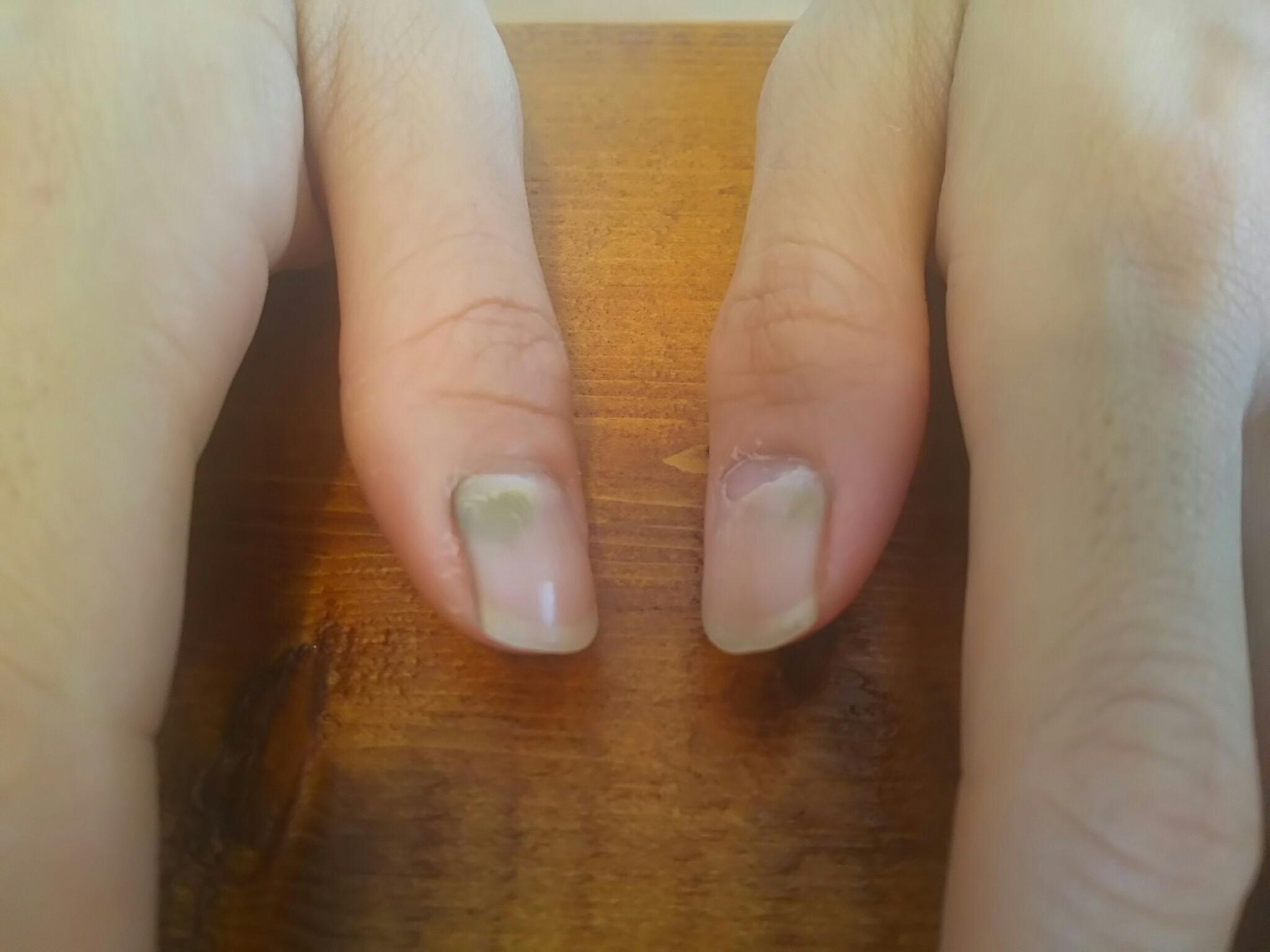 手足口病 爪が剥げる